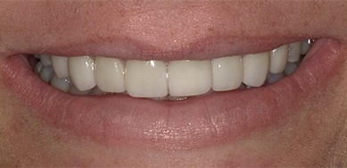 closeup of brilliant white smile after cosmetic dentistry