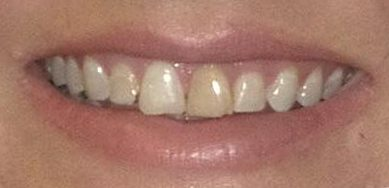 Closeup of yellowed teeth before cosmetic dentistry