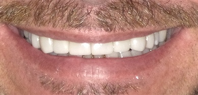 man with flawless white smile after restorative dentistry