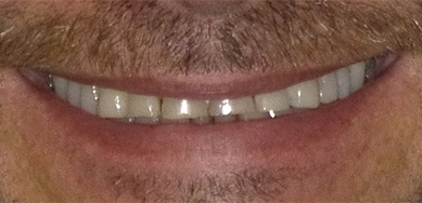 Man with yellow damaged smile before resotrative dentistry